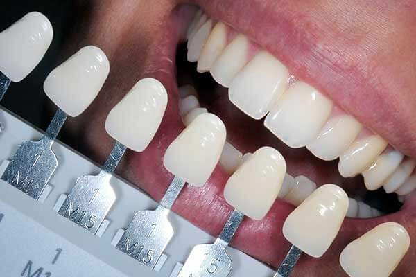 Tooth shade guide being held up to teeth
